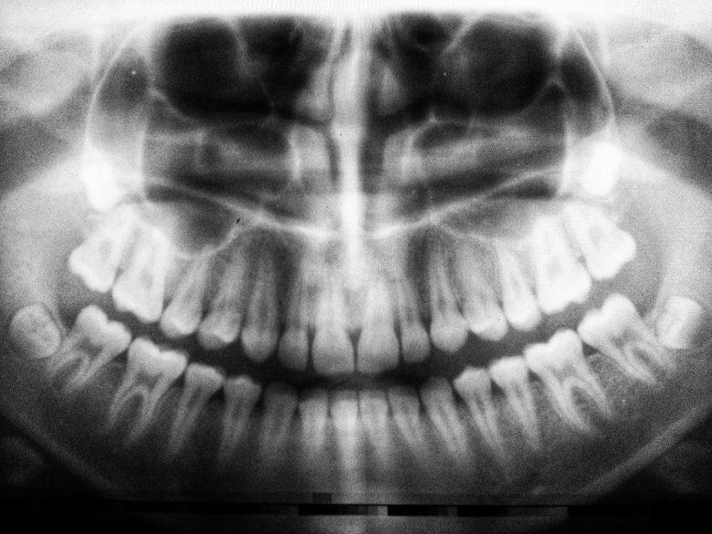 Imola, sconosciuto al Fisco gestiva viaggi per curare denti in Croazia