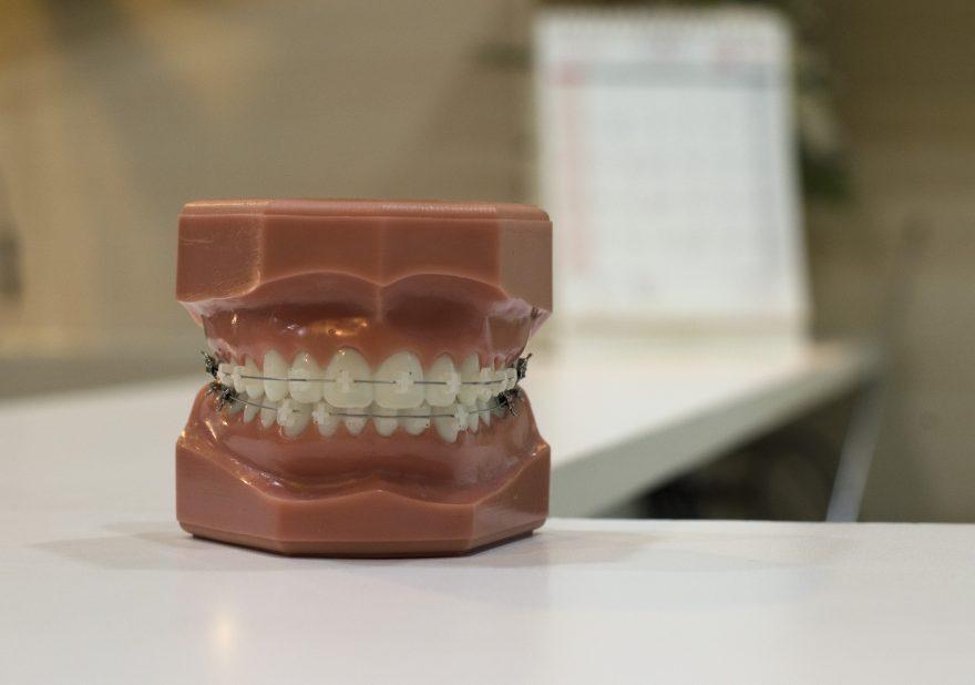 Ortodonzia per adulti: un bel sorriso sano non ha età