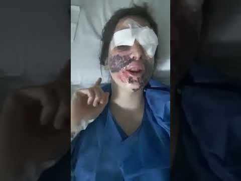 """Gessica Notaro si mostra dopo l'intervento: """"Sono fortunata"""". VIDEO"""