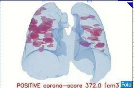 Diagnosi lampo del Covid 19, il test passa da Ravenna